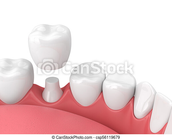 3d render of jaw with teeth and dental crown restoration - csp56119679