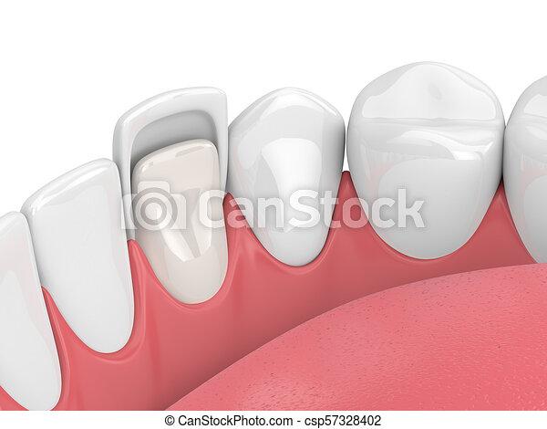 3d render of teeth with veneer - csp57328402