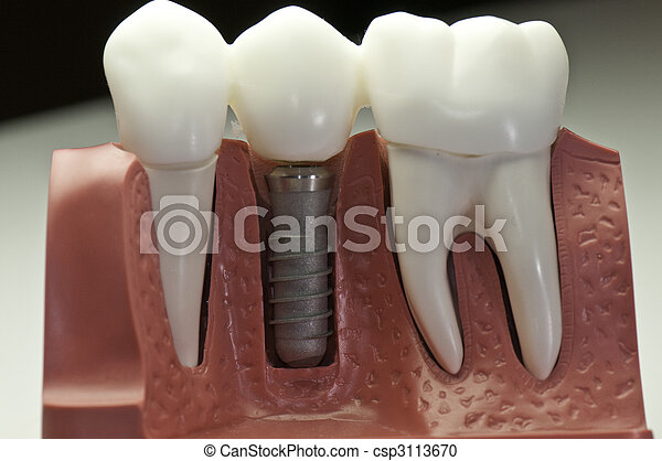 Capped Dental Implant Model - csp3113670