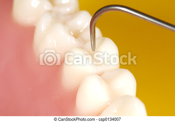 Dental Exam - csp0134007