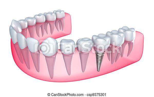 Dental implant in the gum - csp9375301