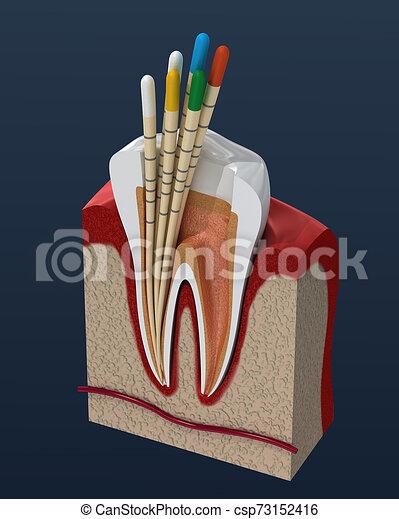Gutta percha endodontics instrument, dental anatomy. 3D illustration - csp73152416
