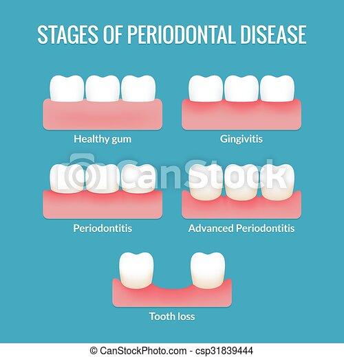 Periodontal Disease Chart - csp31839444