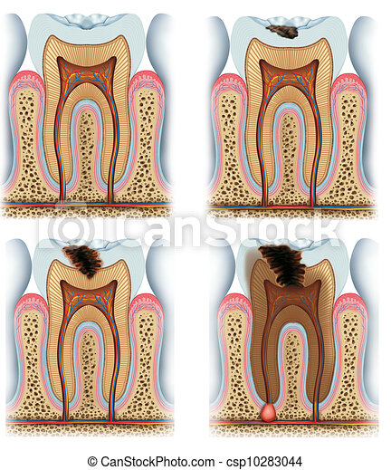 stages of tooth caries - csp10283044