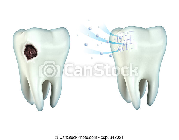 Teeth cavity - csp8342021