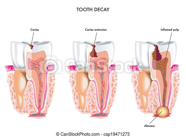 tooth decay - csp19471273