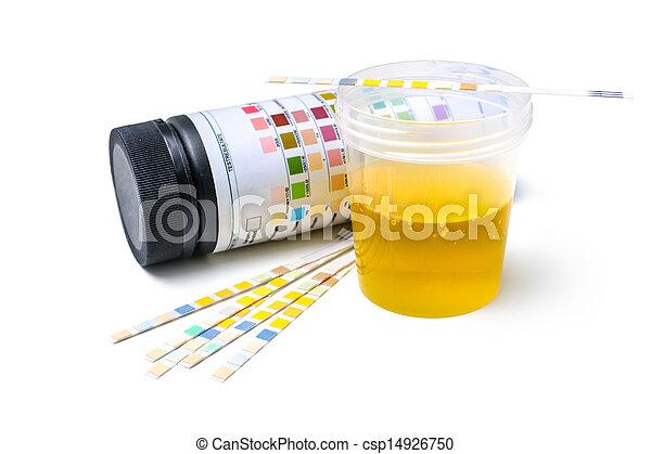 Urine test strips - csp14926750